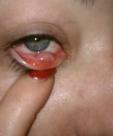 Stylist's eye